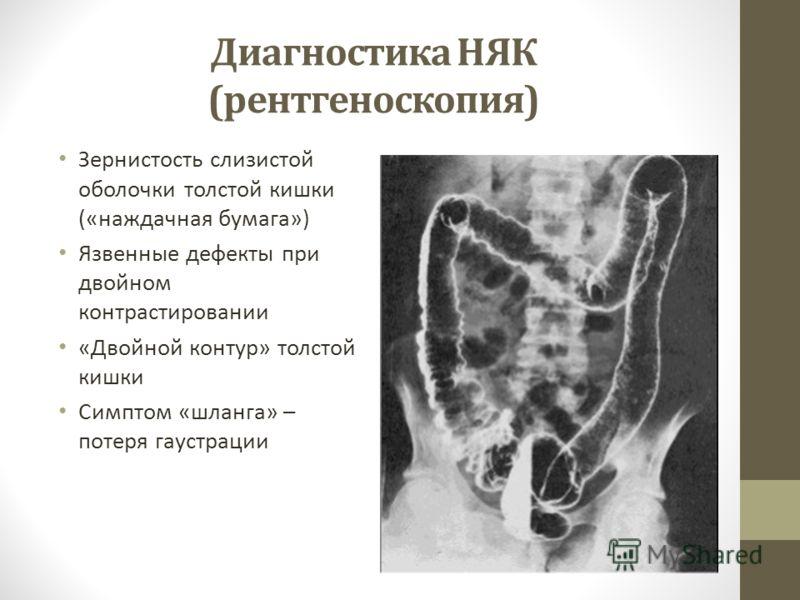 Диагностика НЯК (рентгеноскопия) Зернистость слизистой оболочки толстой кишки («наждачная бумага») Язвенные дефекты при двойном контрастировании «Двойной контур» толстой кишки Симптом «шланга» – потеря гаустрации