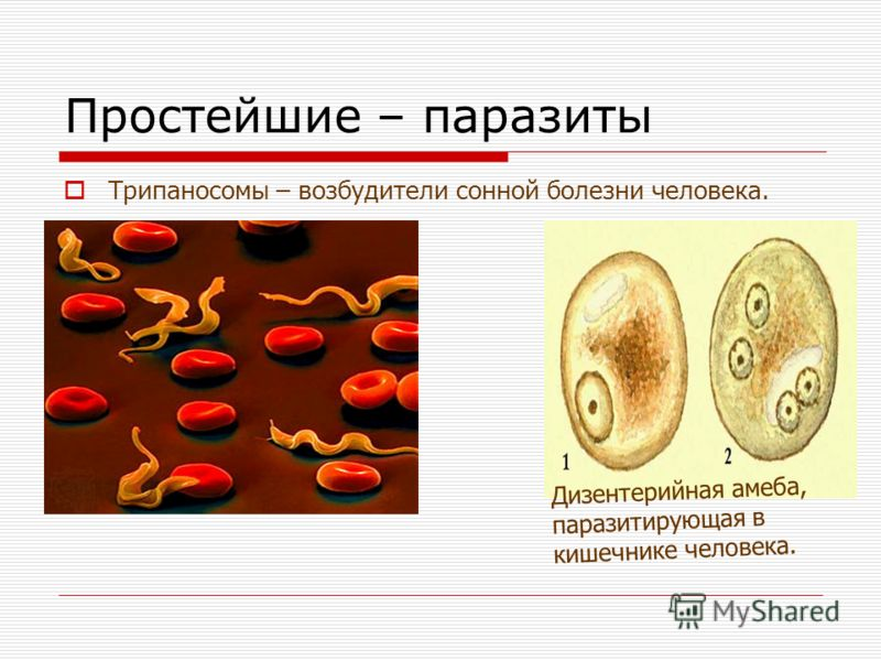 Простейшие – паразиты Трипаносомы – возбудители сонной болезни человека. Дизентерийная амеба, паразитирующая в кишечнике человека.