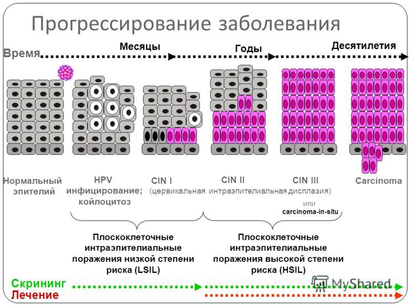 Прогрессирование заболевания Плоскоклеточные интраэпителиальные поражения низкой степени риска (LSIL) Плоскоклеточные интраэпителиальные поражения высокой степени риска (HSIL) Нормальный эпителий HPV инфицирование; койлоцитоз CIN II Carcinoma Время Д