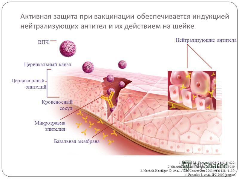 Активная защита при вакцинации обеспечивается индукцией нейтрализующих антител и их действием на шейке ВПЧ Цервикальный канал Нейтрализующие антитела Кровеносный сосуд Микротравма эпителия Базальная мембрана Цервикальный эпителий 1. Stanley M. Vaccin