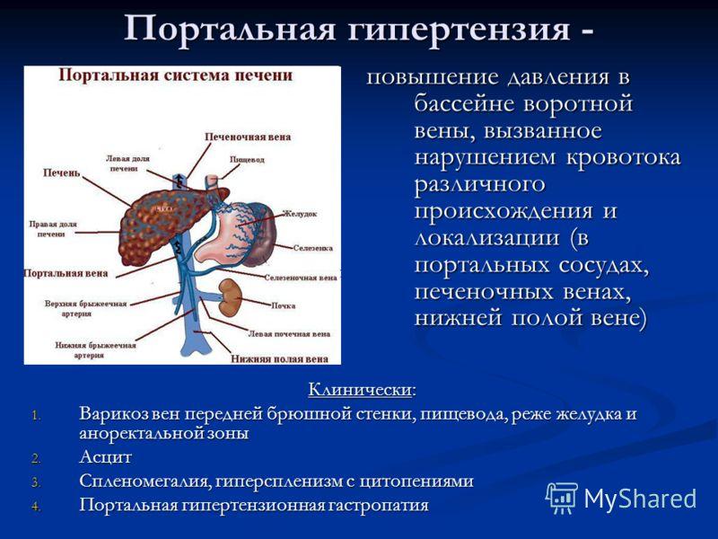 Портальная гипертензия - повышение давления в бассейне воротной вены, вызванное нарушением кровотока различного происхождения и локализации (в портальных сосудах, печеночных венах, нижней полой вене) Клинически: 1. Варикоз вен передней брюшной стенки