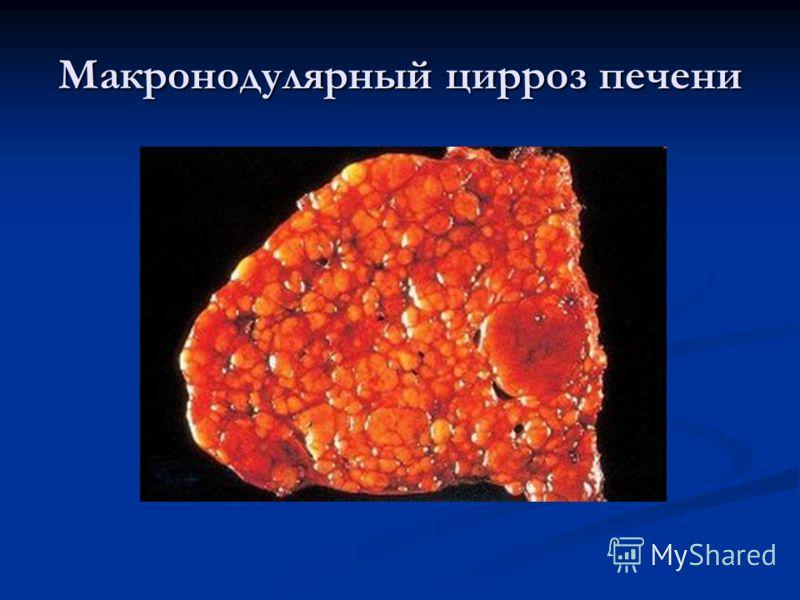 Макронодулярный цирроз печени