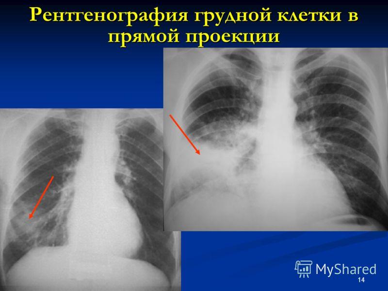 14 Рентгенография грудной клетки в прямой проекции