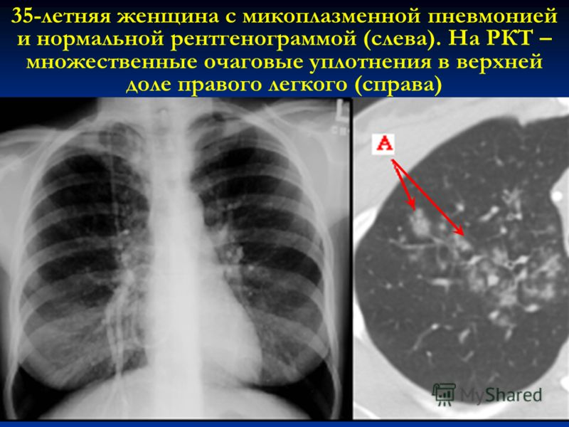15 35-летняя женщина с микоплазменной пневмонией и нормальной рентгенограммой (слева). На РКТ – множественные очаговые уплотнения в верхней доле правого легкого (справа)
