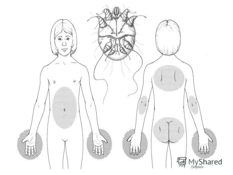 избавиться от паразитов в кишечнике