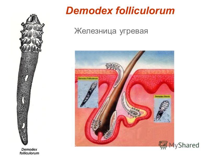 Demodex folliculorum Железница угревая