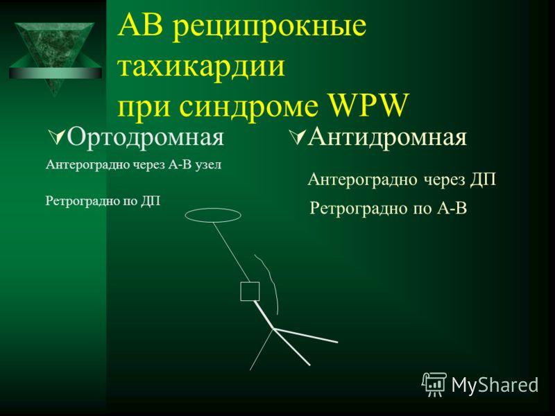 АВ реципрокные тахикардии при синдроме WPW Ортодромная Антероградно через А-В узел Ретроградно по ДП Антидромная Антероградно через ДП Ретроградно по А-В