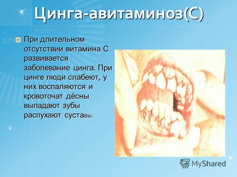 Цинга-авитаминоз(С) При длительном отсутствии витамина С развивается заболевание цинга. При цинге люди слабеют, у них воспаляются и кровоточат дёсны выпадают зубы распухают суста вы. При длительном отсутствии витамина С развивается заболевание цинга.