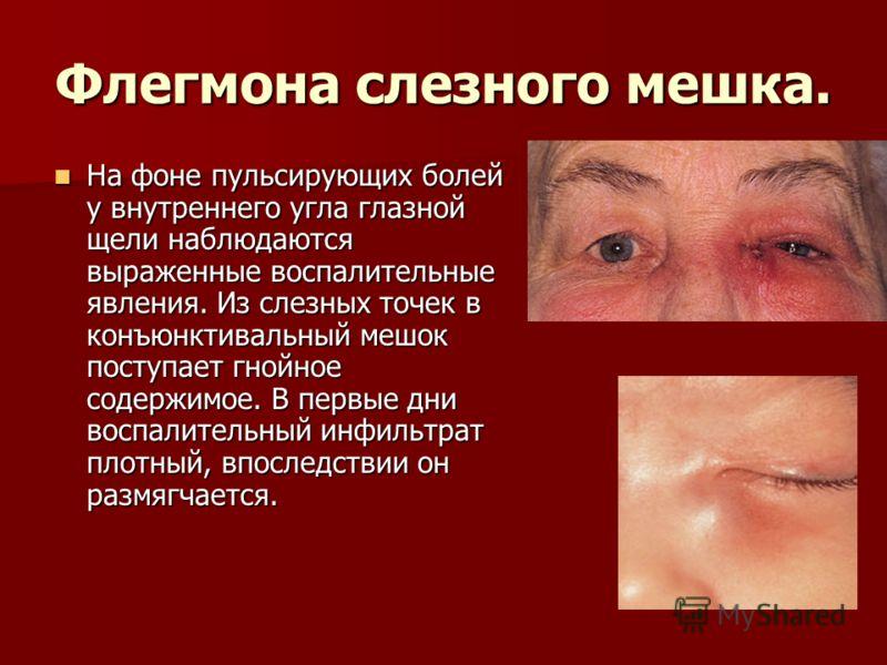 Флегмона слезного мешка. На фоне пульсирующих болей у внутреннего угла глазной щели наблюдаются выраженные воспалительные явления. Из слезных точек в конъюнктивальный мешок поступает гнойное содержимое. В первые дни воспалительный инфильтрат плотный,