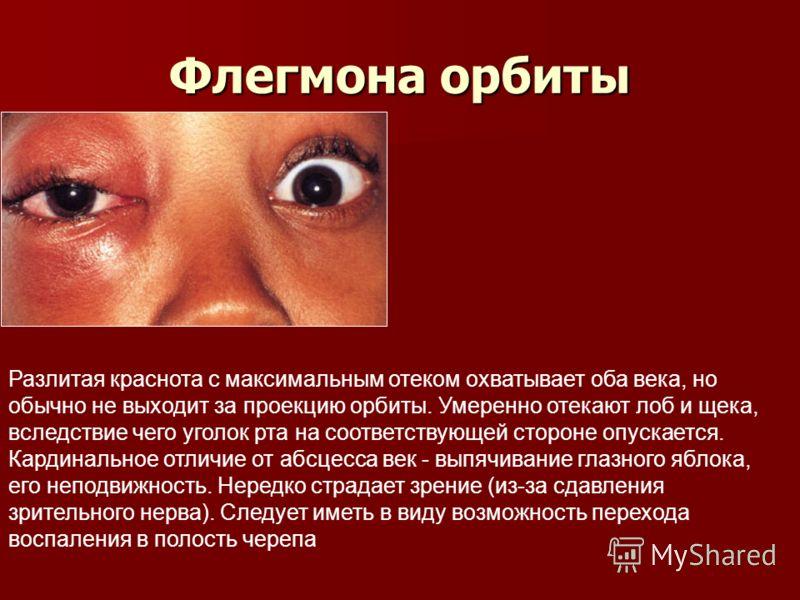 Вернуть зрение гимнастикой для глаз