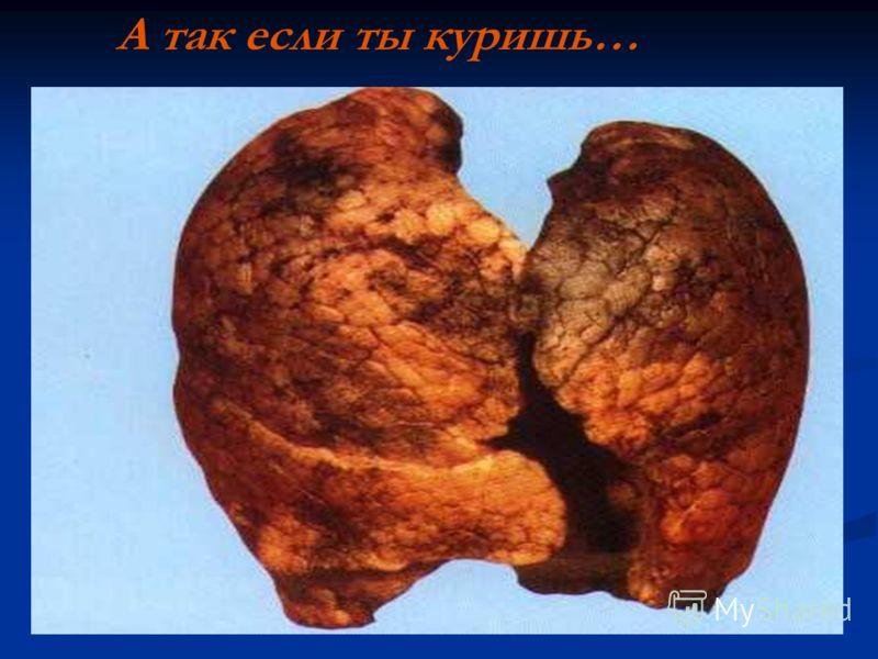 А так если ты куришь…