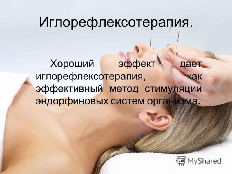 Иглорефлексотерапия. Хороший эффект дает иглорефлексотерапия, как эффективный метод стимуляции эндорфиновых систем организма.