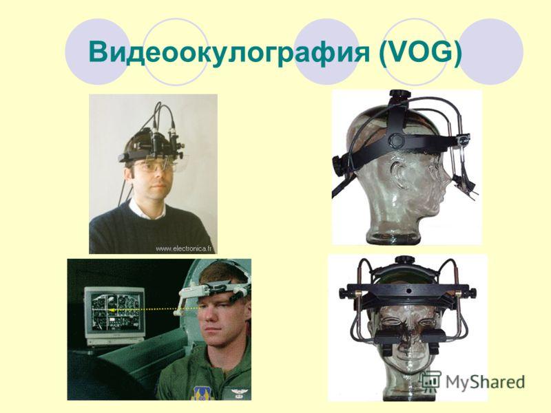 Видеоокулография (VOG)