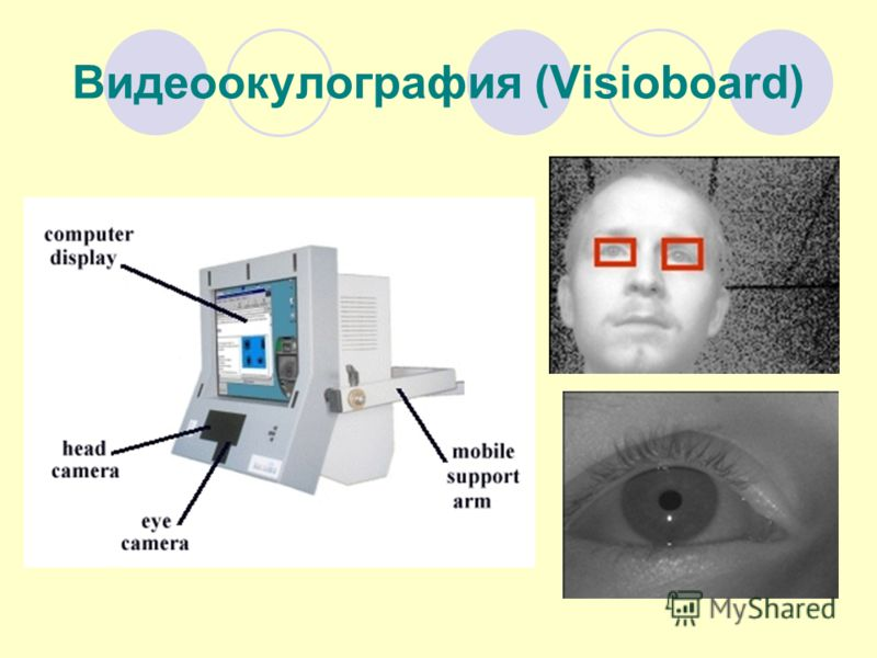Видеоокулография (Visioboard)