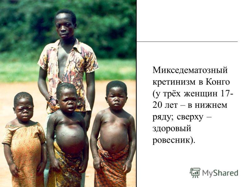 Микседематозный кретинизм в Конго (у трёх женщин 17- 20 лет – в нижнем ряду; сверху – здоровый ровесник).