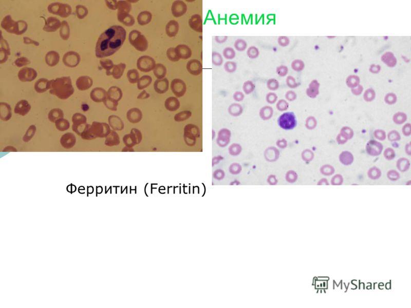 Анемия Ферритин (Ferritin)