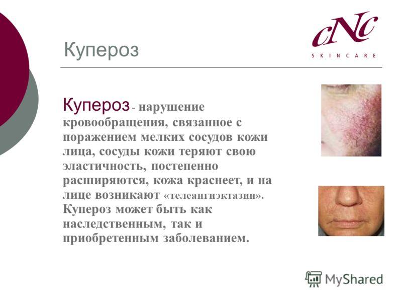 Купероз Купероз - нарушение кровообращения, связанное с поражением мелких сосудов кожи лица, сосуды кожи теряют свою эластичность, постепенно расширяются, кожа краснеет, и на лице возникают «телеангиэктазии». Купероз может быть как наследственным, та