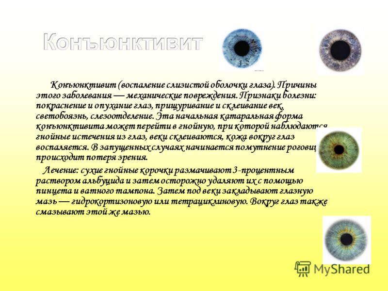 Конъюнктивит (воспаление слизистой оболочки глаза). Причины этого заболевания механические повреждения. Признаки болезни: покраснение и опухание глаз, прищуривание и склеивание век, светобоязнь, слезоотделение. Эта начальная катаральная форма конъюнк