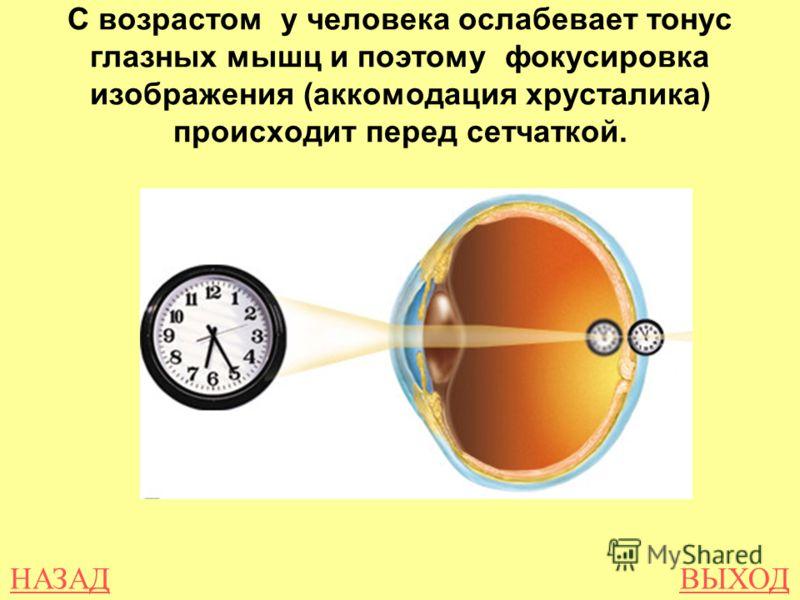 НАЗАДВЫХОД С возрастом у человека ослабевает тонус глазных мышц и поэтому фокусировка изображения (аккомодация хрусталика) происходит перед сетчаткой.