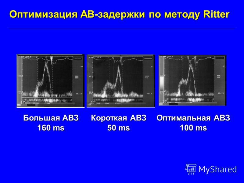 Оптимизация АВ-задержки по методу Ritter Большая АВЗ 160 ms Короткая АВЗ 50 ms Оптимальная АВЗ 100 ms