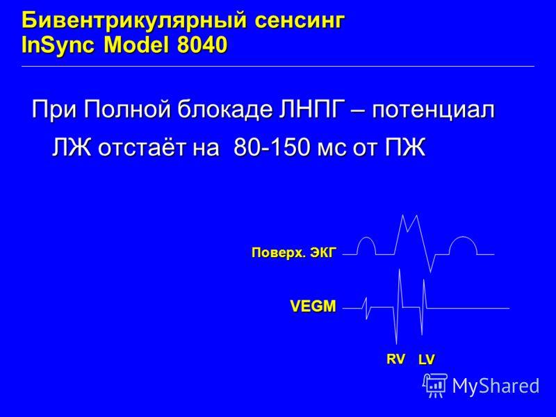 Бивентрикулярный сенсинг InSync Model 8040 При Полной блокаде ЛНПГ – потенциал ЛЖ отстаёт на 80-150 мс от ПЖ VEGM Поверх. ЭКГ RV LV