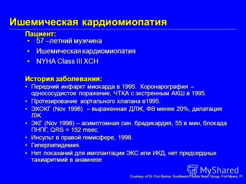57 –летний мужчина57 –летний мужчина Ишемическая кардиомиопатияИшемическая кардиомиопатия NYHA Class III ХСНNYHA Class III ХСН Передний инфаркт миокарда в 1995. Коронарография – однососудистое поражение, ЧТКА с экстренным АКШ в 1995.Передний инфаркт
