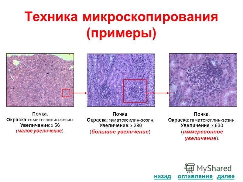Техника микроскопирования (примеры) оглавлениеназад Почка. Окраска: гематоксилин-эозин. Увеличение: х 56 (малое увеличение). Почка. Окраска: гематоксилин-эозин. Увеличение: х 280 (большое увеличение). Почка. Окраска: гематоксилин-эозин. Увеличение: х
