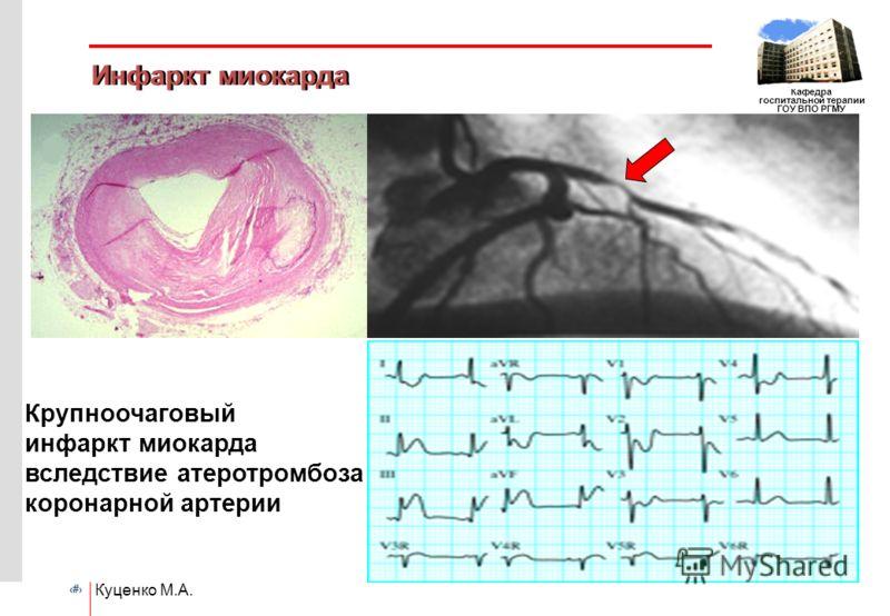 # Кафедра госпитальной терапии ГОУ ВПО РГМУ Куценко М.А. Инфаркт миокарда Крупноочаговый инфаркт миокарда вследствие атеротромбоза коронарной артерии