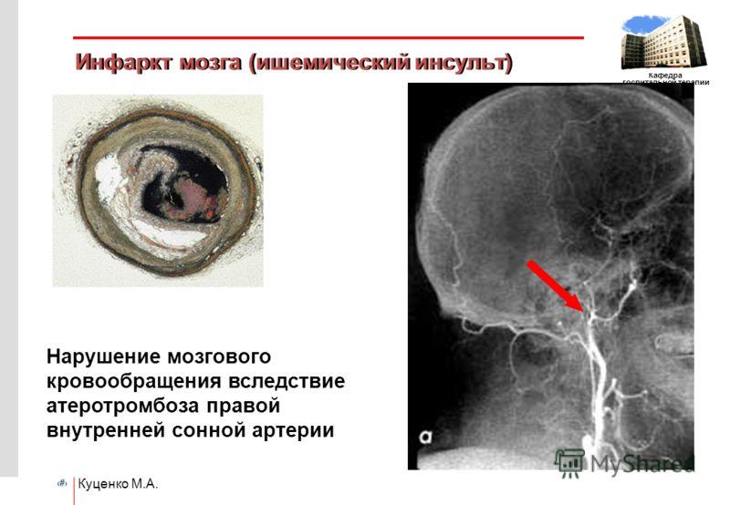 # Кафедра госпитальной терапии ГОУ ВПО РГМУ Куценко М.А. Инфаркт мозга (ишемический инсульт) Нарушение мозгового кровообращения вследствие атеротромбоза правой внутренней сонной артерии