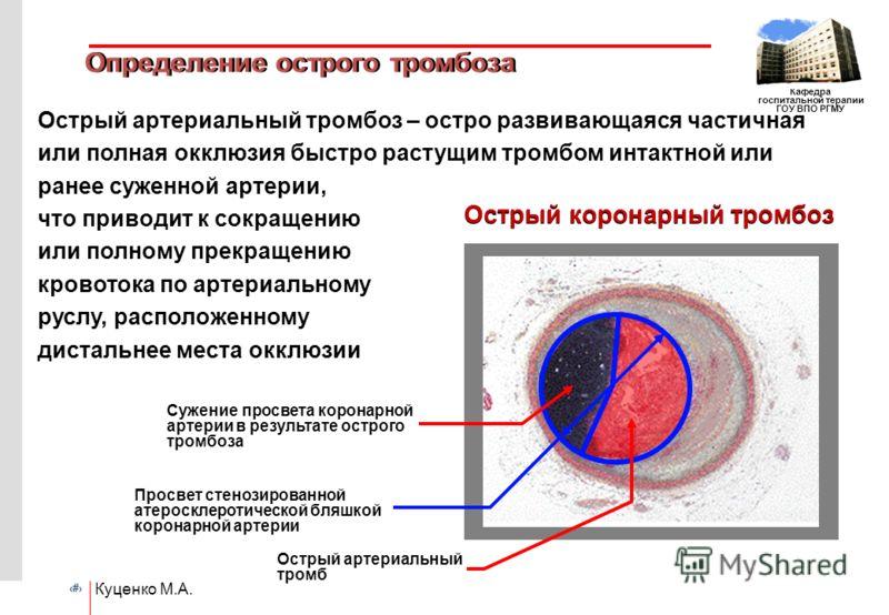 # Кафедра госпитальной терапии ГОУ ВПО РГМУ Куценко М.А. Определение острого тромбоза Острый артериальный тромбоз – остро развивающаяся частичная или полная окклюзия быстро растущим тромбом интактной или ранее суженной артерии, что приводит к сокраще