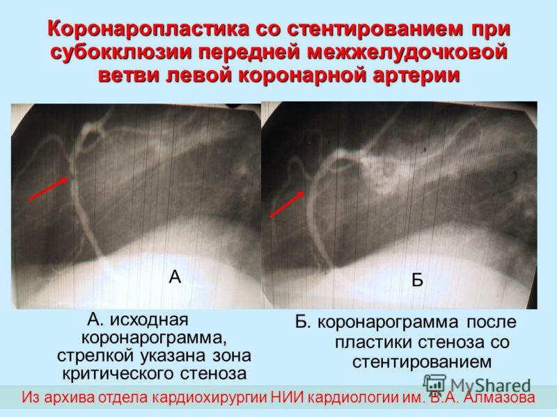 Коронаропластика со стентированием при субокклюзии передней межжелудочковой ветви левой коронарной артерии А. исходная коронарограмма, стрелкой указана зона критического стеноза Б. коронарограмма после пластики стеноза со стентированием А Б Из архива