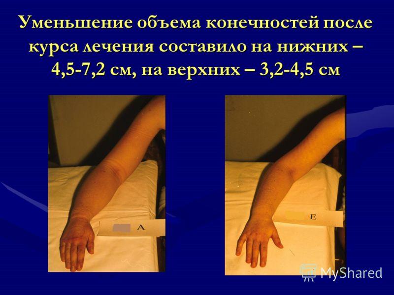 Уменьшение объема конечностей после курса лечения составило на нижних – 4,5-7,2 см, на верхних – 3,2-4,5 см