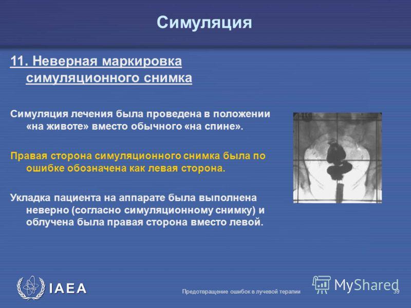 IAEA Предотвращение ошибок в лучевой терапии39 Симуляция 11. Неверная маркировка симуляционного снимка Симуляция лечения была проведена в положении «на животе» вместо обычного «на спине». Правая сторона симуляционного снимка была по ошибке обозначена