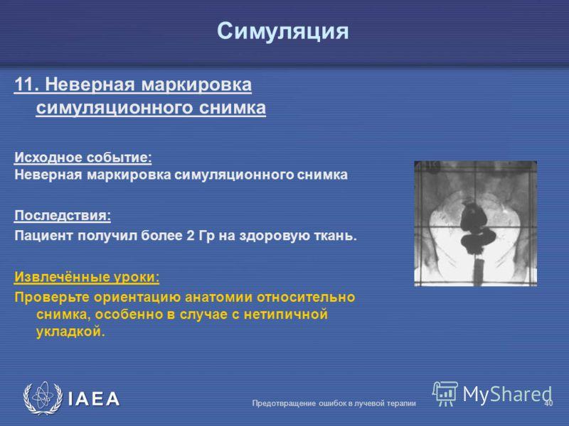 IAEA Предотвращение ошибок в лучевой терапии40 Симуляция 11. Неверная маркировка симуляционного снимка Исходное событие: Неверная маркировка симуляционного снимка Последствия: Пациент получил более 2 Гр на здоровую ткань. Извлечённые уроки: Проверьте