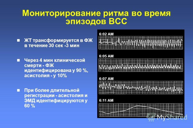 Мониторирование ритма во время эпизодов ВСС 6:02 AM 6:05 AM 6:07 AM 6:11 AM ЖТ трансформируется в ФЖ в течение 30 сек -3 мин Через 4 мин клинической смерти - ФЖ идентифицирована у 90 %, асистолия - у 10% При более длительной регистрации - асистолия и