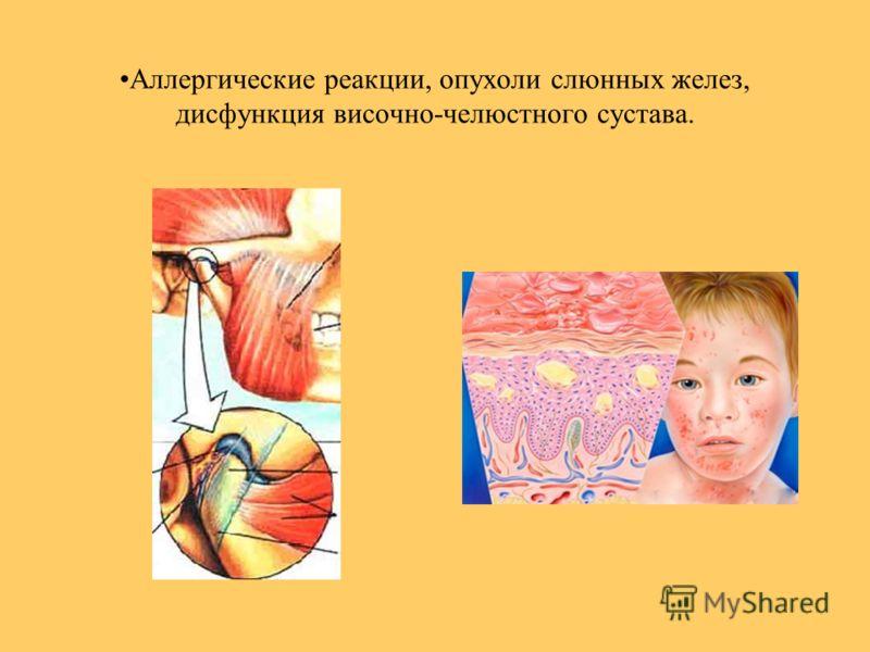 Аллергические реакции, опухоли слюнных желез, дисфункция височно-челюстного сустава.