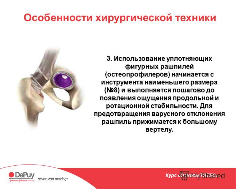 Особенности хирургической техники 3. Использование уплотняющих фигурных рашпилей (остеопрофилеров) начинается с инструмента наименьшего размера (8) и выполняется пошагово до появления ощущения продольной и ротационной стабильности. Для предотвращения