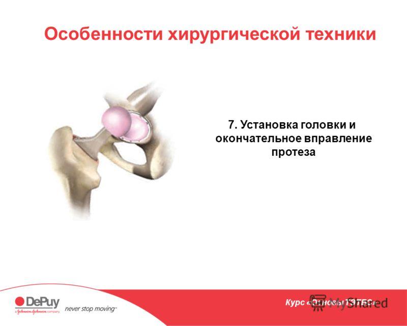 Особенности хирургической техники 7. Установка головки и окончательное вправление протеза Курс «Основы ТЭТБС»