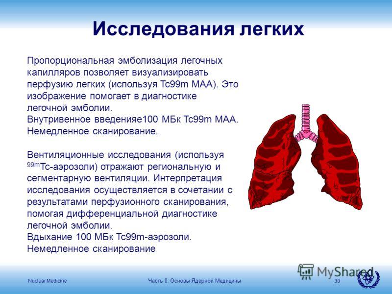 Nuclear Medicine Часть 0: Основы Ядерной Медицины 30 Пропорциональная эмболизация легочных капилляров позволяет визуализировать перфузию легких (используя Tc99m MAA). Это изображение помогает в диагностике легочной эмболии. Внутривенное введенияе100