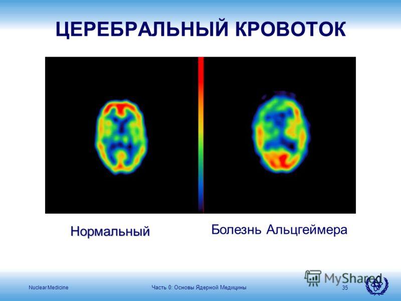 Nuclear Medicine Часть 0: Основы Ядерной Медицины 35 Нормальный Болезнь Альцгеймера ЦЕРЕБРАЛЬНЫЙ КРОВОТОК