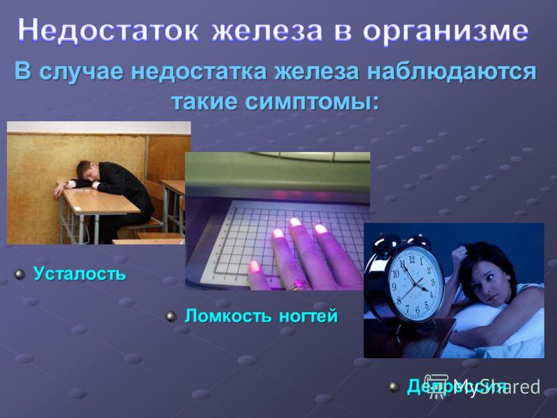 В случае недостатка железа наблюдаются такие симптомы: Усталость Ломкость ногтей Депрессия