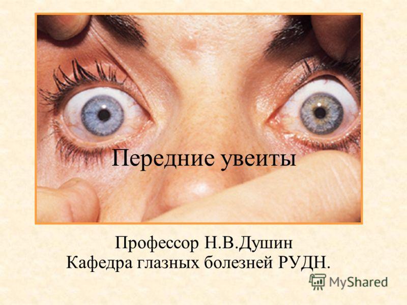 Передние увеиты Профессор Н.В.Душин Кафедра глазных болезней РУДН.