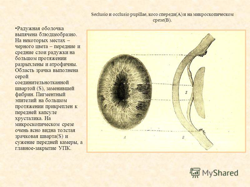 Seclusio и occlusio pupillae, косо спереди(А) и на микроскопическом срезе(В). Радужная оболочка выпячена блюдцеобразно. На некоторых местах – черного цвета – передние и средние слои радужки на большом протяжении разрыхлены и атрофичны. Область зрачка