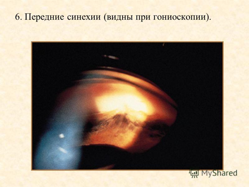6. Передние синехии (видны при гониоскопии).