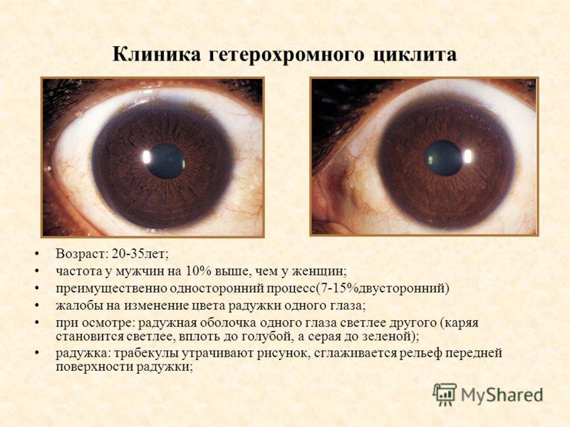 Клиника гетерохромного циклита Возраст: 20-35лет; частота у мужчин на 10% выше, чем у женщин; преимущественно односторонний процесс(7-15%двусторонний) жалобы на изменение цвета радужки одного глаза; при осмотре: радужная оболочка одного глаза светлее