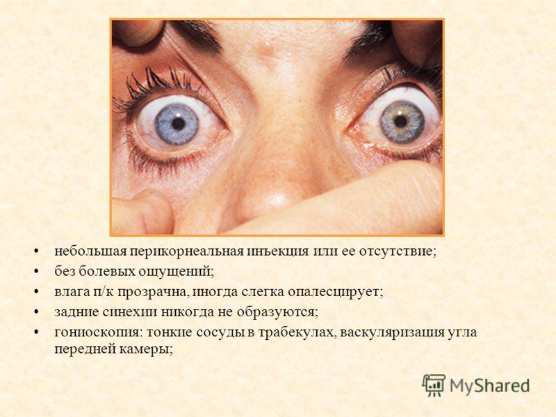 небольшая перикорнеальная инъекция или ее отсутствие; без болевых ощущений; влага п/к прозрачна, иногда слегка опалесцирует; задние синехии никогда не образуются; гониоскопия: тонкие сосуды в трабекулах, васкуляризация угла передней камеры;