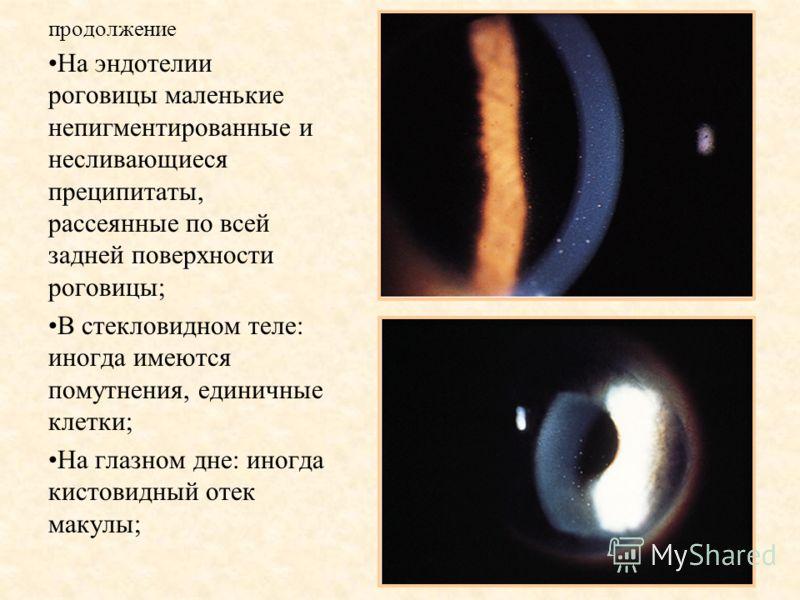 продолжение На эндотелии роговицы маленькие непигментированные и несливающиеся преципитаты, рассеянные по всей задней поверхности роговицы; В стекловидном теле: иногда имеются помутнения, единичные клетки; На глазном дне: иногда кистовидный отек маку