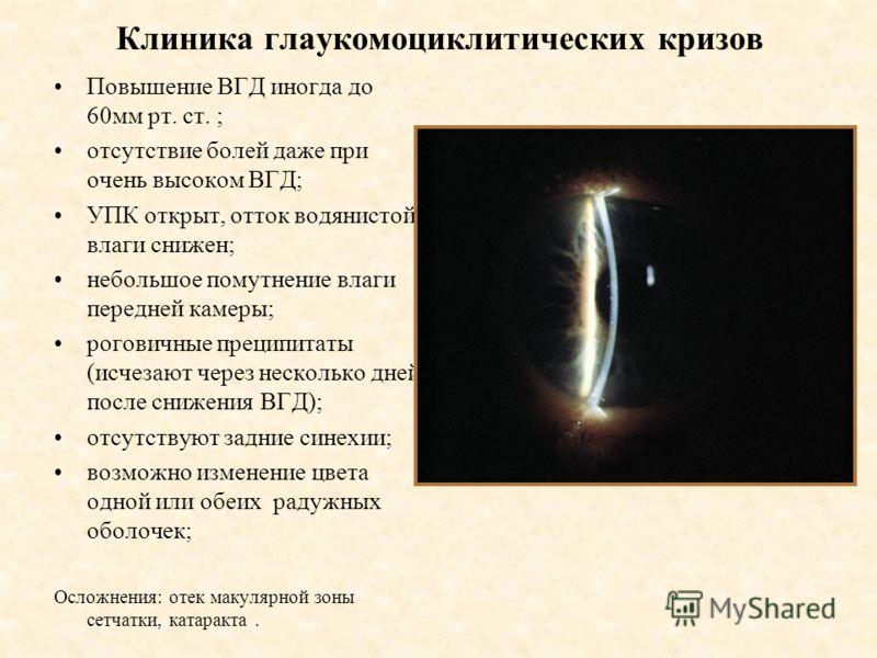 Клиника глаукомоциклитических кризов Повышение ВГД иногда до 60мм рт. ст. ; отсутствие болей даже при очень высоком ВГД; УПК открыт, отток водянистой влаги снижен; небольшое помутнение влаги передней камеры; роговичные преципитаты (исчезают через нес