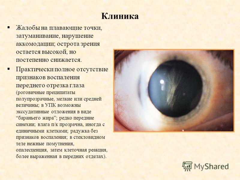 Клиника Жалобы на плавающие точки, затуманивание, нарушение аккомодации; острота зрения остается высокой, но постепенно снижается. Практически полное отсутствие признаков воспаления переднего отрезка глаза (роговичные преципитаты полупрозрачные, мелк