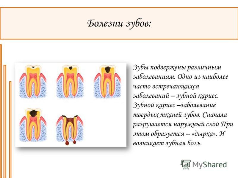 Болезни зубов: Зубы подвержены различным заболеваниям. Одно из наиболее часто встречающихся заболеваний – зубной кариес. Зубной кариес –заболевание твердых тканей зубов. Сначала разрушается наружный слой При этом образуется – «дырка». И возникает зуб